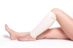 Leg Injury Claim