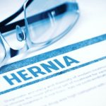 Hernia Injury Compensation Claims – Accident Claims Advice