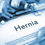 Hernia Compensation Claim