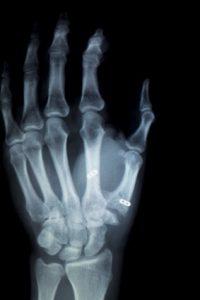 Wrist Xray