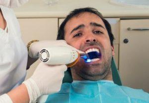 Cosmetic Dentistry Negligence