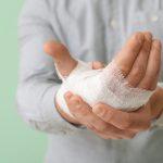 Burnt Hands