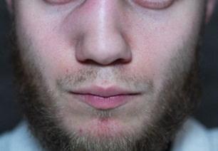 Nose Injury Claim