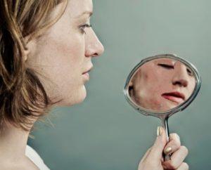 Facial Scar Compensation Claim