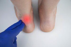 Achillies Tendon Injury Claim