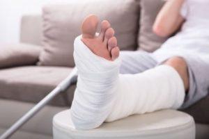 Misdiagnosed Fracture Claim